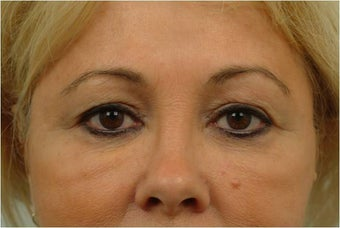 Upper and Lower Blepharoplasty before 386628