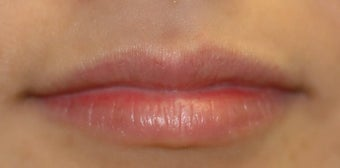 Juvederm in Lips before 871673