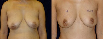 Minimally Invasive Scarless Breast Lift before 1197690
