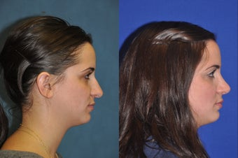 Rhinoplasty before 256042
