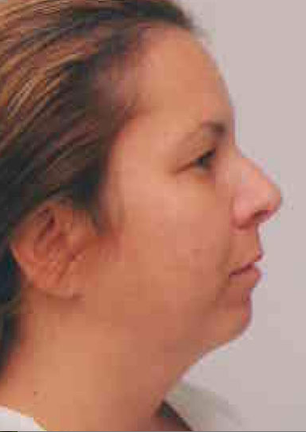 Chin Implant before 724313