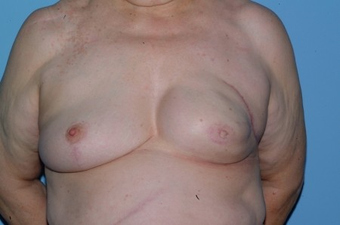 70-year-old Breast Reconstruction patient had bilateral reconstruction  after 963246