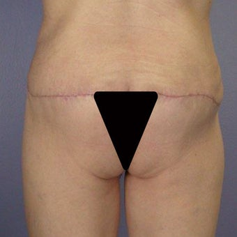 Butt Augmentation after 280812