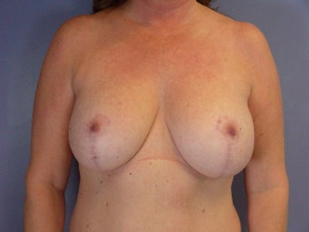 MASTOPEXY/AUGMENTATION  after 280026