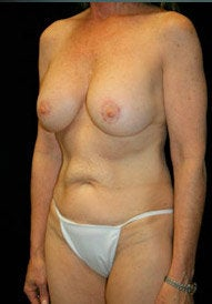 Breast Lift and Periareolar Lift after 400994