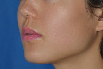 Botox (or Dysport) for Jaw Slimming 1008142