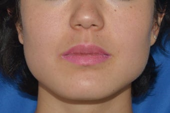 Botox (or Dysport) for Jaw Slimming before 1008142