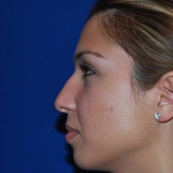Rhinoplasty before 1357421