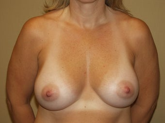 Breast Implants after 683118