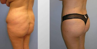 Butt Augmentation (Fat Transfer) before 257907