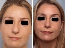 Rhinoplasty before 143646