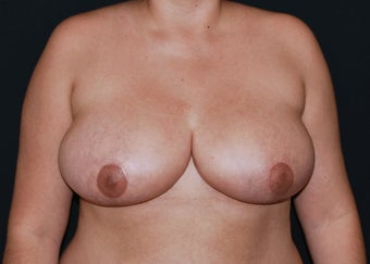 Breast Reduction after 949251