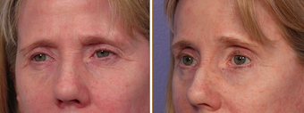 Eyelid Surgery before 271163
