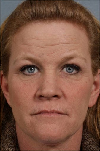 46 year old female with crows feet, loss of lip volume with smokers lines, heaviness of upper eye lids before 821871