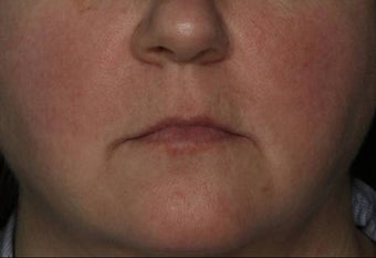Female Treated for Rosacea/Photoaging after 772032
