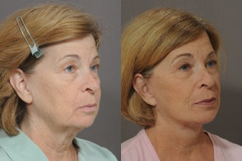 Lower Face and Neck Lift after 850299