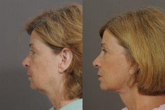 Lower Face and Neck Lift 850299