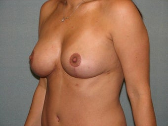 Breast lift 403877