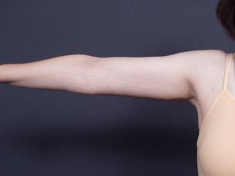49 year old with sagging arm skin after 626304