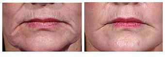 Restylane for wrinkles before 6265