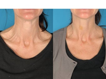Botox for Neck Bands before 686137