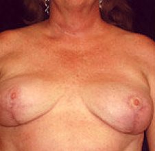 Breast implant removal and breast lift. after 316568