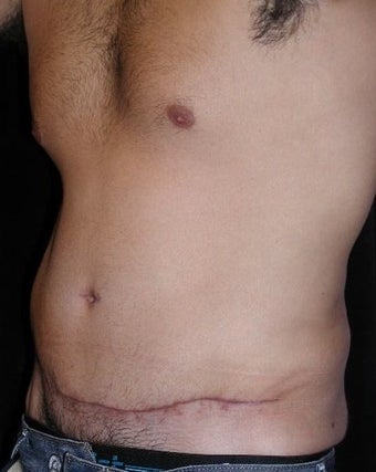 Male tummy Tuck, Flank Liposuction 578162