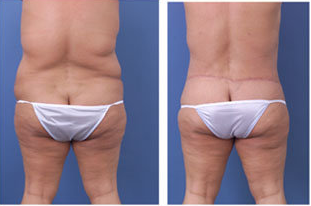 Central body lift with liposuction of thighs and back, age 42 after 6815