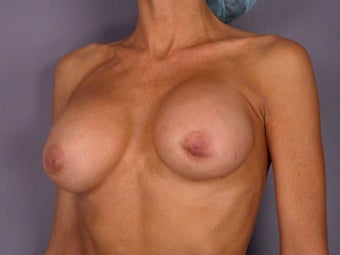 Breast Revision before 307241