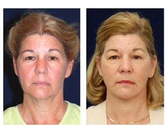 Lower Face and Neck Lift before 355159