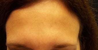 Botox Injections after 624760