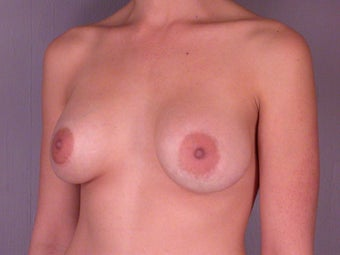 Breast Revision Surgery  before 307419