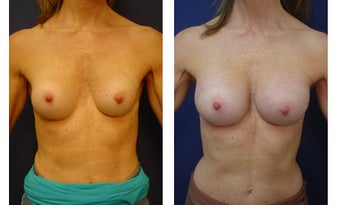 Breast implant correction before 399965