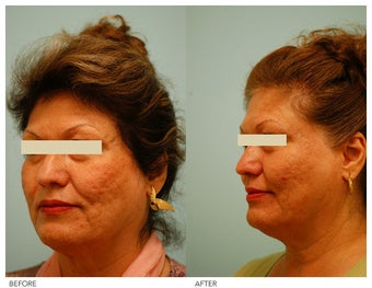 Acne Scarring Correction before 136796