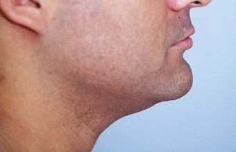 Neck liposuction before 68525