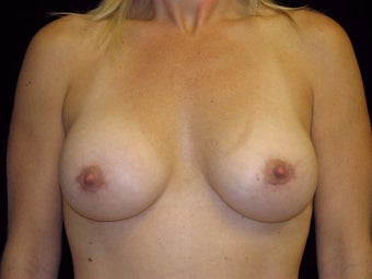 Breast augmentation after 293899