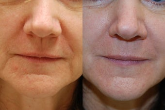 Silikon-1000 for non-surgical rejuvenation around the mouth before 126598