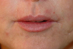 Restylane injections for upper lip lines  after 91656