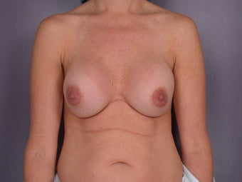 Breast Revision Surgery  before 307254