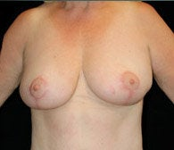 Breast Lift after 633839