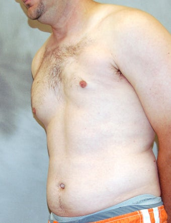 Male Chest Enhancement before 525472