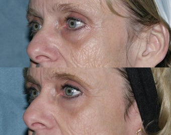 Fraxel repair with C02/Erbium lasers for upper lip wrinkles before 104313