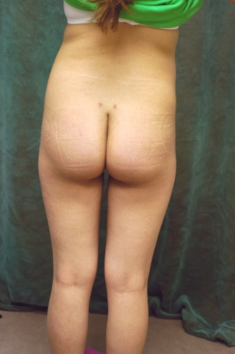 Women's Buttocks Augmentation  518112