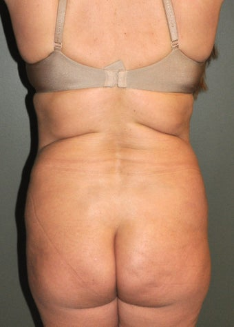 Body Liposuction after 520941