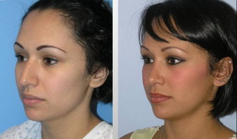 Rhinoplasty before 163633