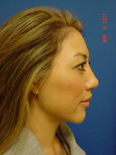 Chin Augmentation/rhinoplasty 383867