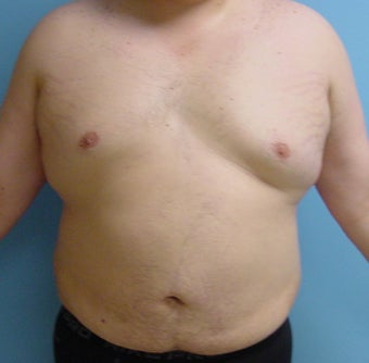 Male liposuction/liposculpture after 314976