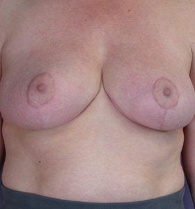Breast Reduction after 285318