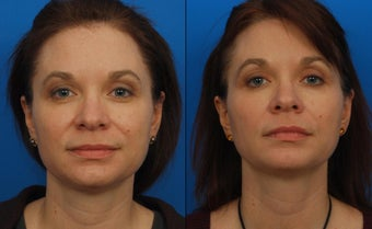 Ultherapy before 411575