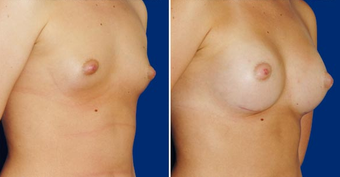 Breast Implants after 494483